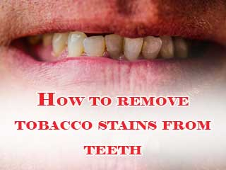 How to remove tobacco stains from teeth